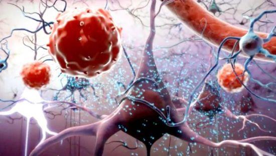 脐带血是胎儿娩出、脐带结扎并离断后残留在胎盘和脐带中的血液,近几十年的医学实践证明,脐带血中含有可以重建人体造血和免疫系统的造血干细胞,可用于造血干细胞移植,治疗多种疾病。 脐带血造血干细胞在治疗脊髓损伤方面的作用也被逐渐认识,如可通过表达神经营养因子,改善微环境,从而有利于神经修复;实验中观察到移植的脐带血造血干细胞向远处小距离迁移,受体胶质细胞可向移植物内迁移,髓鞘化的轴突可向移植物内生长,可明显促进动物的肢体运动功能恢复,提高动物对于刺激的反应性。 脐带间充质干细胞有效改善运动或感觉功能 脐带间充质